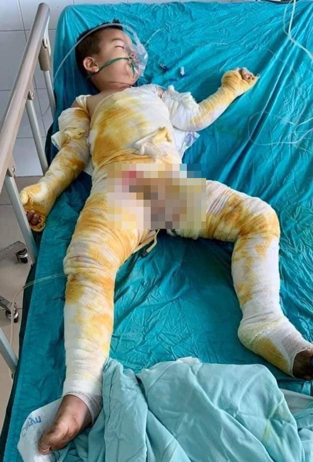 Hai người còn sống trong vụ cả nhà bỏng nặng do cháy điều hòa ở Hà Tĩnh đã có tiến triển tốt - Ảnh 2.