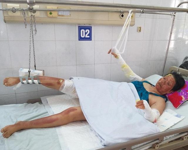 Chồng mất, 3 mẹ con bị bỏng nặng sau vụ cháy điều hòa đang rất cần sự giúp đỡ  - Ảnh 2.