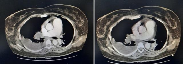Chuyên gia nói gì về việc người phụ nữ ở TPHCM bị thuyên tắc phổi do uống thuốc tránh thai liên tục suốt 10 năm? - Ảnh 1.