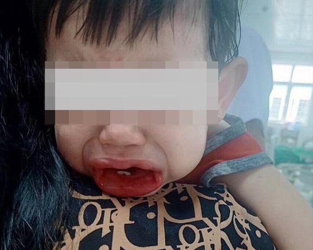 Bé 2 tuổi uống nhầm bột tẩy rửa bồn cầu - Ảnh 1.