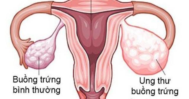 Bé 11 tuổi mắc ung thư buồng trứng nhưng bố mẹ nhầm là béo bụng, chuyên gia chỉ rõ nếu có dấu hiệu này cần đi khám sớm - Ảnh 3.