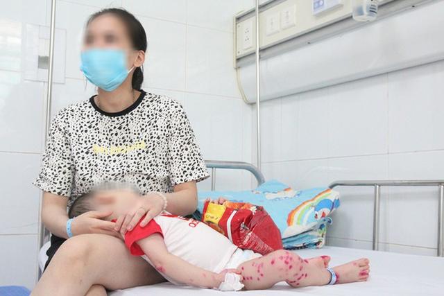 Gần 11.000 trường hợp mắc tay chân miệng, Bộ Y tế gửi công văn khẩn tăng cường công tác phòng chống - Ảnh 1.