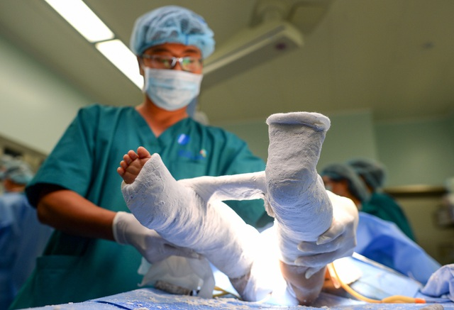 Cuộc đại phẫu đặc biệt tách song sinh dính liền - Ảnh 17.