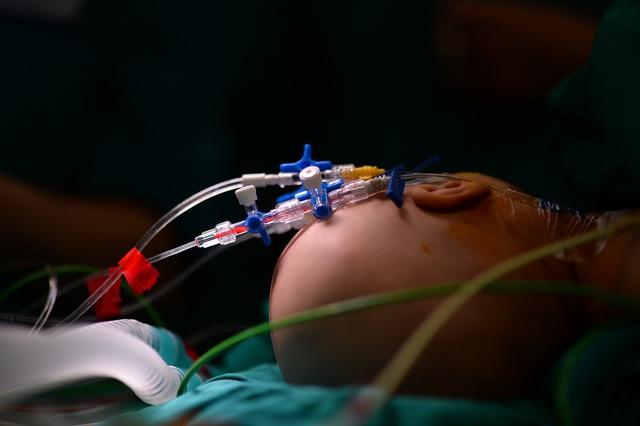 Cuộc đại phẫu đặc biệt tách song sinh dính liền - Ảnh 10.