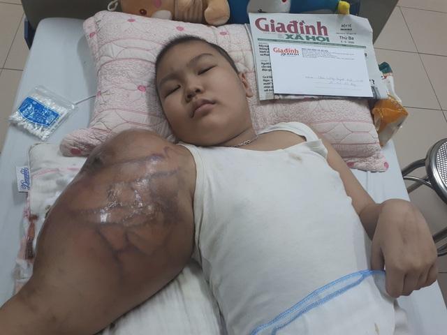 Cánh tay của cô bé dân tộc Tày mắc ung thư xương hoại tử, không thể thực hiện phẫu thuật - Ảnh 2.