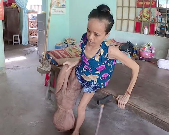 Cảnh đời buồn của người phụ nữ có chân to nhất Việt Nam - Ảnh 2.