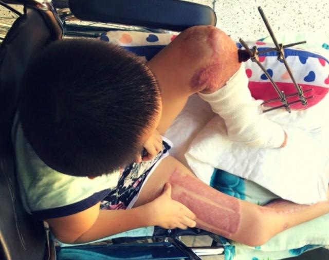 Tai nạn đau lòng: Đạp xe đi mua sữa, bé trai 9 tuổi bị container cán nguy kịch - Ảnh 3.