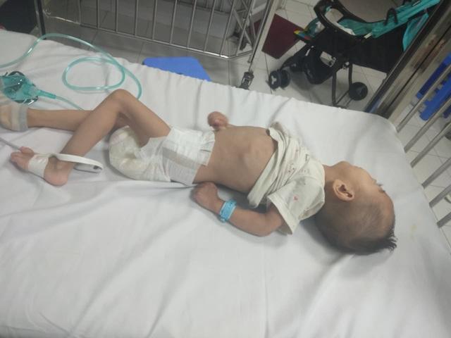 """Xót xa cháu bé 3 tuổi nặng 4,5kg mang nhiều """"khiếm khuyết"""" cần sự trợ giúp - Ảnh 4."""