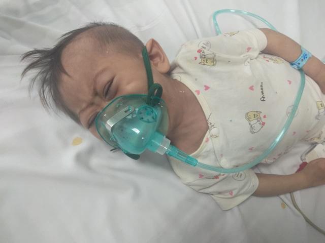"""Xót xa cháu bé 3 tuổi nặng 4,5kg mang nhiều """"khiếm khuyết"""" cần sự trợ giúp - Ảnh 3."""