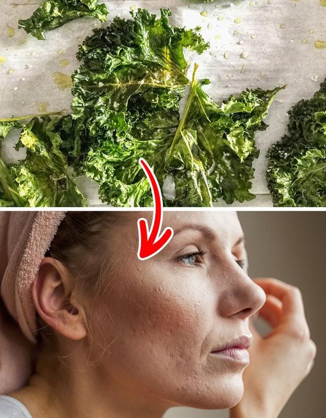 Ai đã từng bị mụn sẽ biết sẹo do mụn để lai xấu xí thế nào, thêm ngay 7 loại thực phẩm này vào bữa ăn để đánh bay sẹo mụn đáng ghét - Ảnh 2.