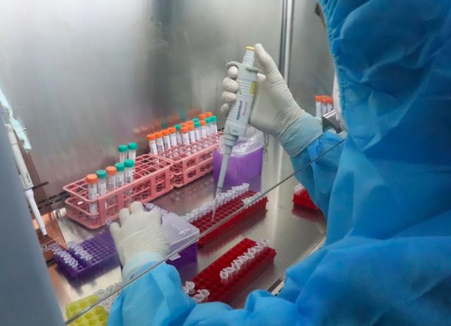60% bệnh nhân COVID-19 ở Việt Nam không xuất hiện triệu chứng - Ảnh 3.