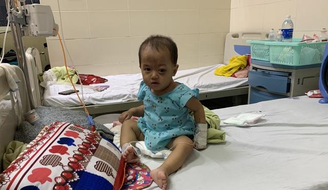 Người cha dân tộc nghèo khổ bất lực nhìn khối u ở mắt của con mỗi ngày một lớn - Ảnh 2.