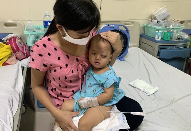 Người cha dân tộc nghèo khổ bất lực nhìn khối u ở mắt của con mỗi ngày một lớn - Ảnh 3.