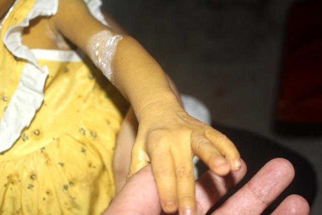 Tiếng khóc xé lòng của bé gái 8 tháng tuổi mang 2 căn bệnh quái ác và nỗi đau tột cùng của đôi vợ chồng nghèo - Ảnh 8.