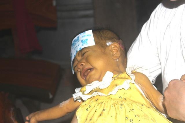 Tiếng khóc xé lòng của bé gái 8 tháng tuổi mang 2 căn bệnh quái ác và nỗi đau tột cùng của đôi vợ chồng nghèo - Ảnh 3.