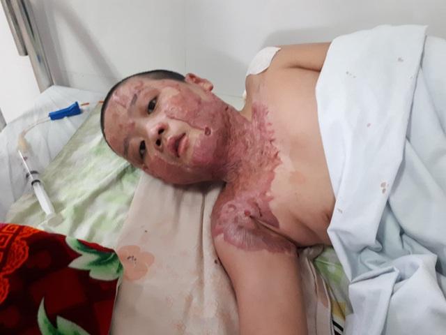 Sẹo co kéo khiến cậu bé bị bỏng xăng không thể quay nổi đầu - Ảnh 3.