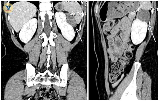 Chuyên gia chia sẻ kỹ thuật phát hiện sớm, chính xác tổn thương bệnh lý và khối u  - Ảnh 1.