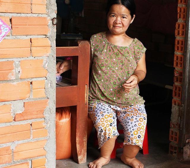 Chuyện tình bi thương của những phụ nữ tí hon ở Tây Ninh - Ảnh 4.