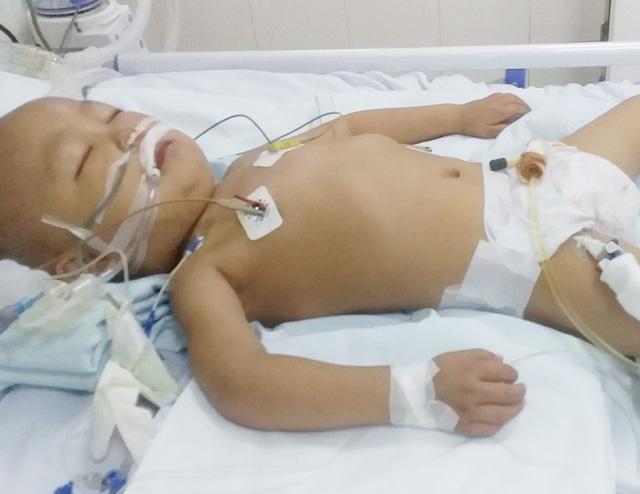 Sau bữa ăn tối, bé trai 4 tuổi đang mắc ung thư máu bỗng suy đa tạng, hôn mê suốt 2 tháng, đối mặt với tử thần - Ảnh 3.