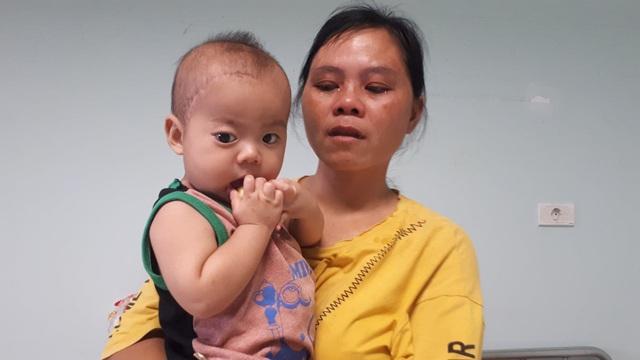 Bé trai có khối u đẩy lồi mắt nhận được sự giúp đỡ của bạn đọc hảo tâm - Ảnh 2.