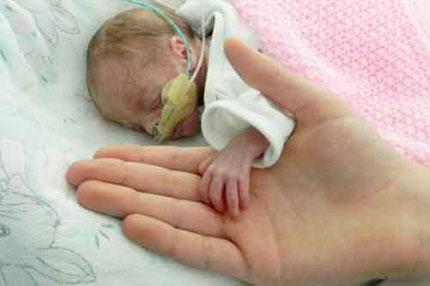 Sức sống thần kỳ của em bé chào đời chỉ nặng 700g 1