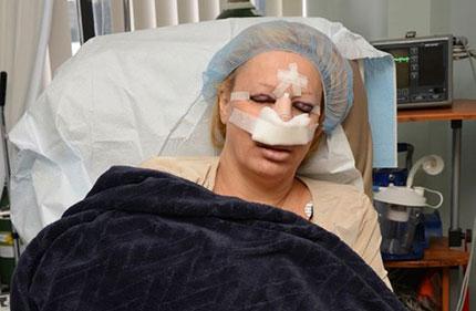 Bà mẹ 6 con nghiện phẫu thuật thẩm mỹ vì muốn trở thành búp bê sống 1