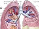 Căn bệnh ung thư ám ảnh, 1 phút có 3 người chết - GDN