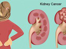 6 dấu hiệu cảnh báo bạn có nguy cơ mắc bệnh ung thư th�n
