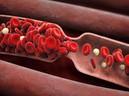 """Chuyên gia chia sẻ cách làm sạch """"rác"""" trong mạch máu: Việc làm nhỏ giúp ngăn ngừa t� vong"""
