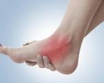 Bệnh mắt cá chân có phải là mụn cóc?