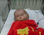 Xót xa người mẹ trẻ khi đưa con tới bệnh viện thì đã quá nặng