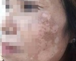 Da mặt loang lổ vì dùng lá trầu không trị nám