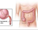 Những dấu hiệu viêm ruột thừa nhất định không được chủ quan