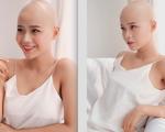 Mắc ung thư khi vừa tròn 19 tuổi, nữ sinh ĐH Ngoại thương nhắn nhủ lời cảnh tỉnh thói quen xấu nhiều người hay mắc