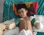 Mất đôi tay, cậu bé 12 tuổi bị điện giật chỉ mong giữ được đôi chân