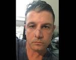 Phóng viên Mỹ kể về giây phút kinh hoàng bị chó cắn nát mặt
