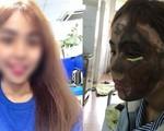 Tâm sự cay đắng của cô gái Đà Nẵng bị chồng sắp cưới làm công an tạt axít