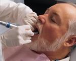Các bệnh răng miệng thường gặp ở người cao tuổi