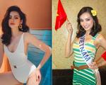Căn bệnh khiến Hoa hậu Trúc Diễm bị mắt lồi, mặt sưng nguy hiểm như thế nào?