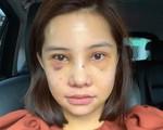 """Lưu Đê Ly khoe trải qua 6 ca phẫu thuật ở Hàn để """"đập mặt làm lại"""", đẹp hay không chưa bàn chỉ biết là quá dũng cảm rồi!"""