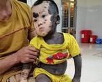 Nhói lòng hình ảnh bé trai 20 tháng tuổi với làn 'da chó', mồ côi mẹ, không tiền chữa trị