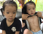 Không có tiền phẫu thuật tim, bé gái 4 tuổi có nguy cơ mất đi sự sống