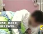 Nhiều học sinh nhập viện trong tình trạng ngộ độc, bác sĩ phát hiện nhiều dị vật trong bụng, hóa ra bị thầy giáo bắt ăn rác