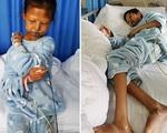 Xót xa nữ sinh qua đời sau 5 năm nhịn đói chữa bệnh cho em