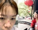 """Bác sĩ chống dịch corona ở Vũ Hán: """"Đóng bỉm vì đi vệ sinh là xa xỉ"""""""
