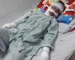 Xót xa mẹ đơn thân nghèo bị bỏng nặng xin về nhà vì không có tiền điều trị