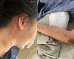 Cô gái bị đánh dã man suốt 2 giờ nói về mối quan hệ với gã đàn ông xăm trổ