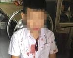 Vụ phụ huynh đánh HS lớp 1 nhập viện ở Hoà Bình: Cả hai đứa trẻ đều bị tổn thương tâm lý