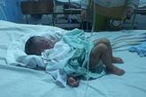 Bé 20 tháng tuổi bỏng nặng bởi nồi cháo của mẹ