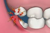 Tất cả những điều bạn cần biết về răng khôn
